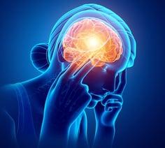 SNHH_Migraine.jpg